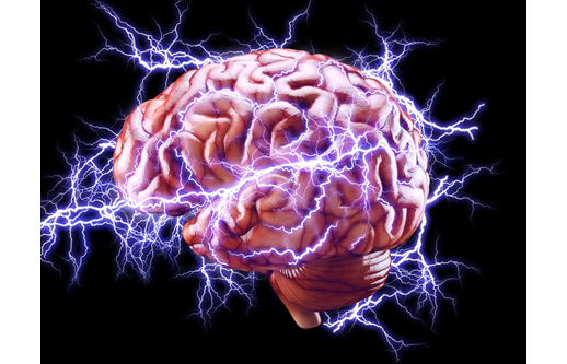 brain with electric sparks radiating out from it